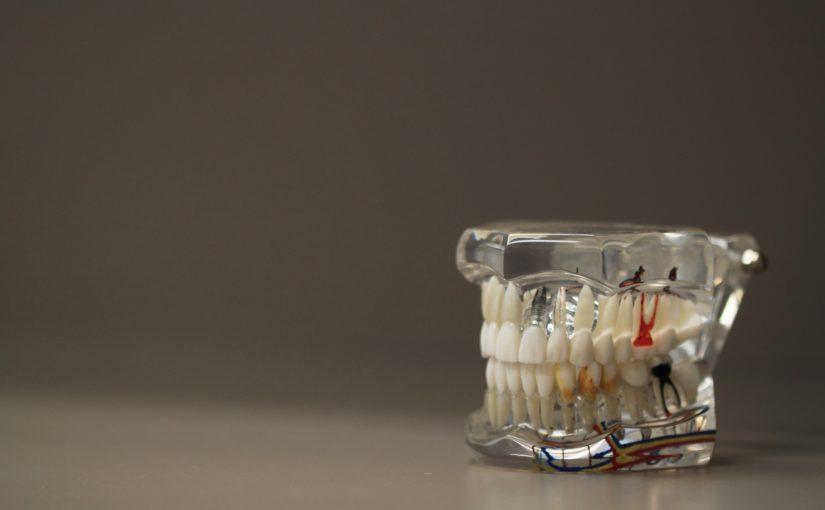 Zła metoda żywienia się to większe ubytki w jamie ustnej oraz dodatkowo ich zgubę